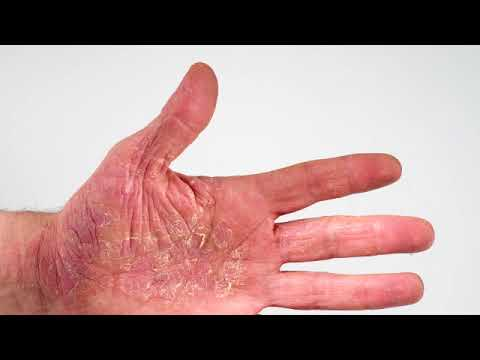 Die Schuppenflechte der Nägel der Finger des Fotos