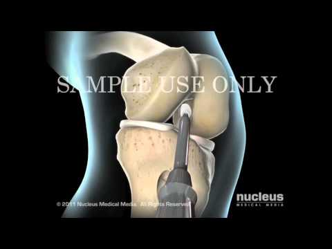 Хирургия коленного сустава - Разрыв передней крестообразной связки