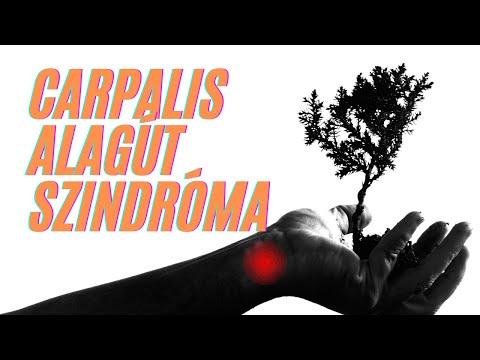A 2 fokú artrózis hatékony kezelése