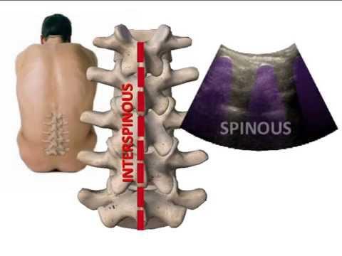 Deformante artrosi 1 passo ginocchio