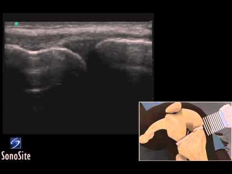 Daños en el cartílago articular de la articulación de la rodilla