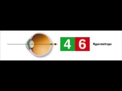 Tabele de tratament pentru îmbunătățirea vederii