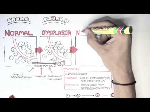 Tratament pentru helmintiază la adulți