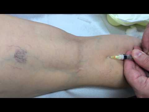 Εργαστηριακές εξετάσεις για την υπέρταση