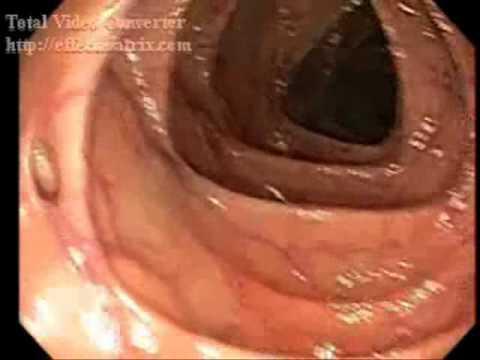 Giardia มือถืออัตโนมัติ