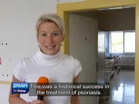 Sorion longuent du psoriasis