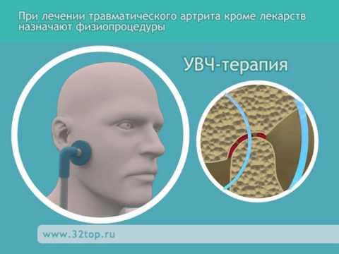 Лечение артрита височно-нижнечелюстного сустава