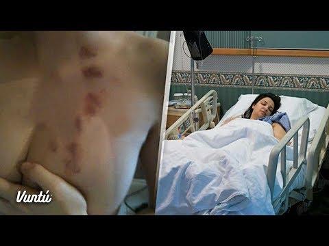 La operación al pecho irkutsk