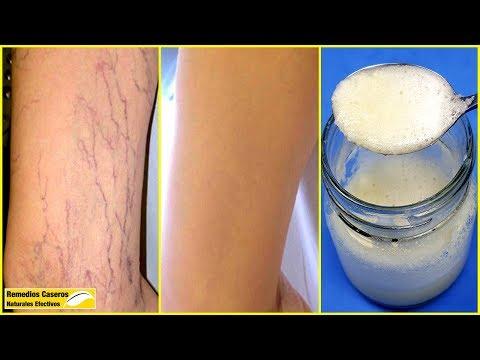 Sarcina și picioarele varicoase