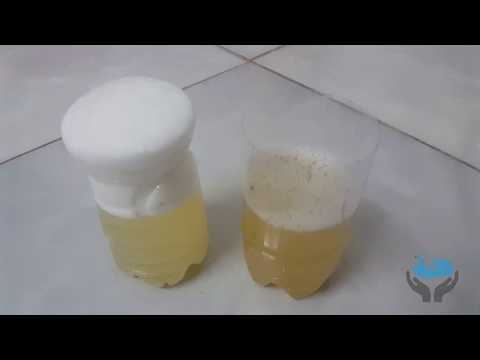 Baking Soda Pregnancy Test Negative Pictures Pregnancy Test