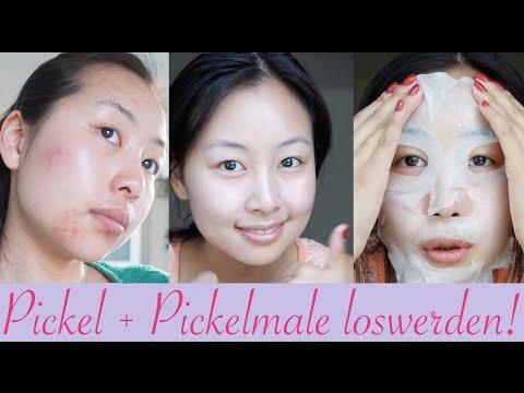 Wie die Pigmentation der Haut bei die Scheckhaut wieder herzustellen