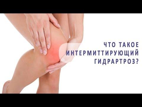 Что такое интермиттирующий гидрартроз (перемежающаяся водянка) сустава?