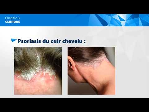 Si le psoriasis donnent le groupe