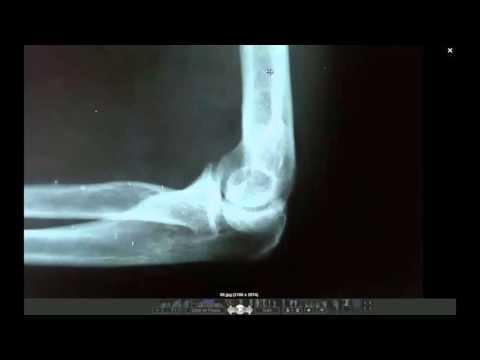 Ejercicio del dolor de espalda en YouTube