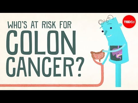 Who's Most At Risk of Colon Cancer