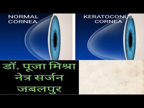 keratoconus látás-helyreállító műtét ülj le élesen