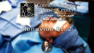 Dr. Jabor - Renuvion Pt.2