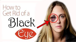 How to Get Rid of a Black Eye Fast at Home || Home Remedies for Black Eye Treatment