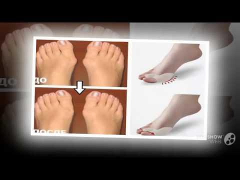 Пяточно-вальгусная деформация стопы у новорожденного