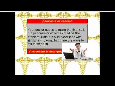 Le psoriasis entre les plis