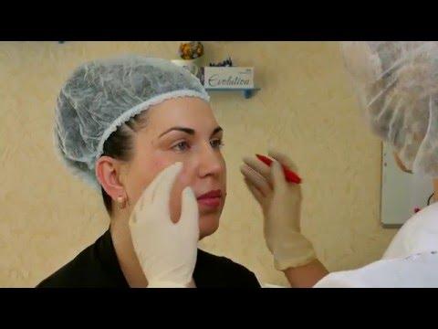 Клиника лазерной микрохирургии глаза на маерчака отзывы