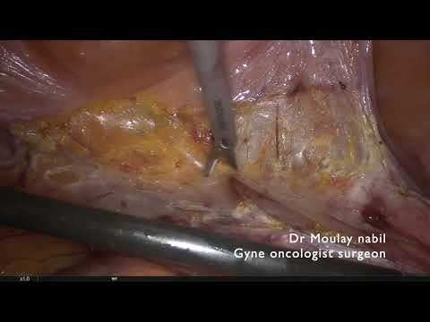 Didactic Hysterectomy for Endometrial Cancer