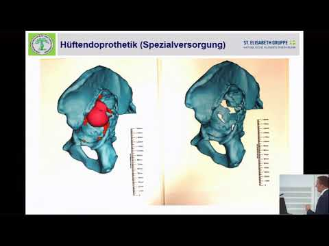 Don Behandlung von Osteoarthritis