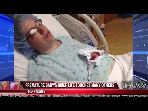 Premature Baby's Brief Life Touches Many Others