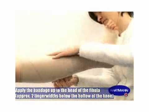 Warikosnoje die Venenentzündung auf den Beinen die Behandlung