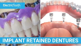 Implant retained dentures explained