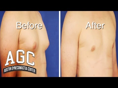 Educational Video: Dr. Caridi Discusses Gynecomastia
