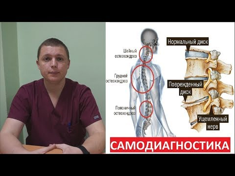 Причина появления шейного остеохондроза