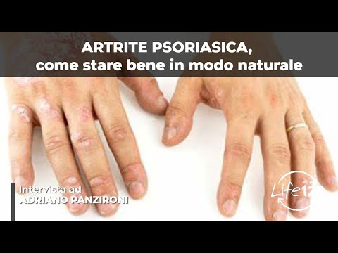 Diagnosi differenziale di dermatite atopic con eczema