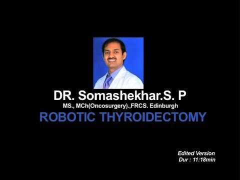 Robotic Thyroidectomy Patient - 2