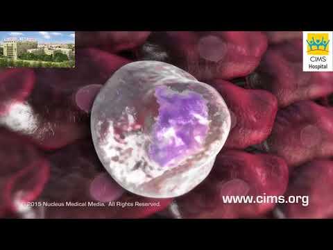 Ovarian cancer emedicine