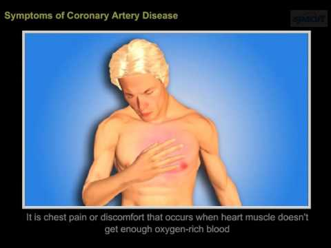 Video Coronary Artery  disease-symptoms