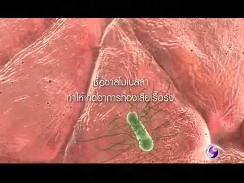การวินิจฉัย bioresonance ของปรสิต