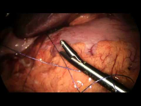 Posizione thrombophlebitis