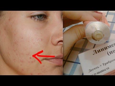 Чем отбелить кожу на лице от пигментации