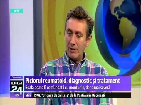 Metode de tratare a artrozei extremităților inferioare