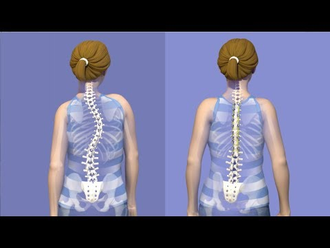 ICD10 lesión de tobillo consecuencias