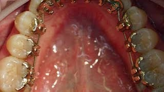 preview picture of video 'gibt es eine unsichtbare Zahnspange? Was ist Inkognito'