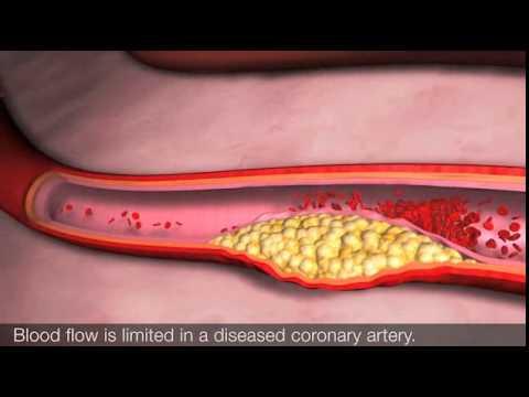 Hypertonie und ihre Ursachen