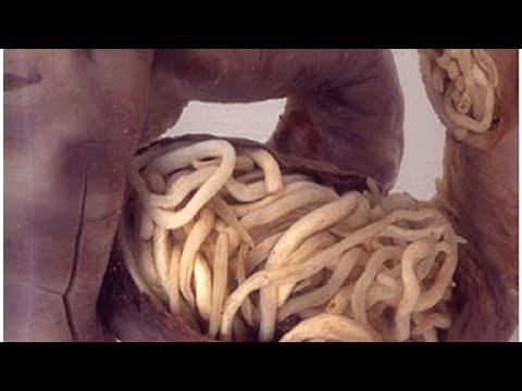 Le foie les parasites lail