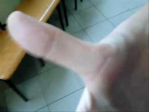 Bolące guzki na nogach kciuka jako uczta