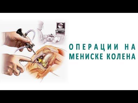 Какие операции делают на мениске колена?