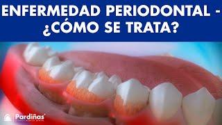 La piorrea (periodontitis) y su influencia en la salud ©