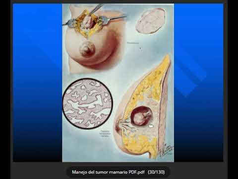Gaura de vierme în timpul sarcinii