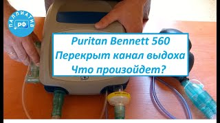 Заблокирован выдох у аппарата ИВЛ Puritan Bennett 560. Сможет ли дышать пациент?