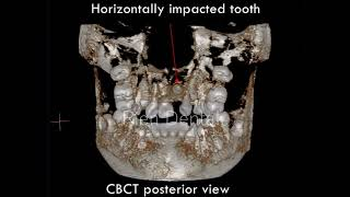 Surgical exposure of two impacted teeth.